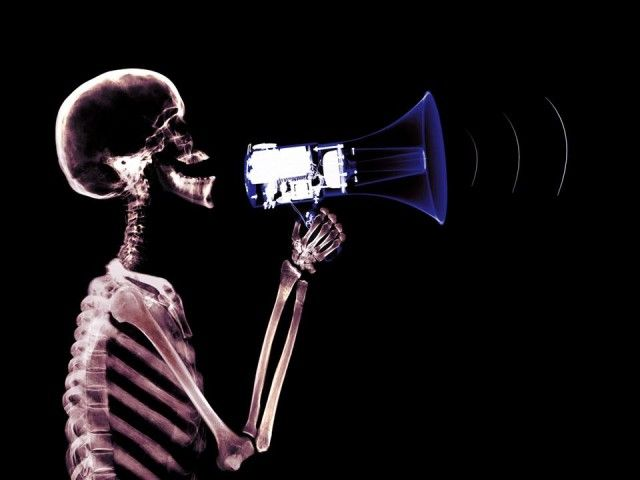 X-Ray xr15.jpg